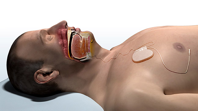 winx breathing machine