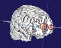 prefrontalcortexluciddream
